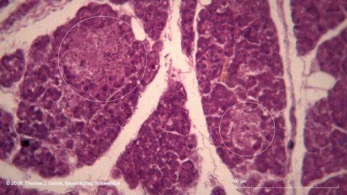 Mikrobild05 Bauchspeicheldrüse