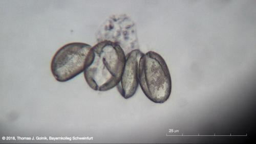 Mikrobild06 Pollen Narzisse