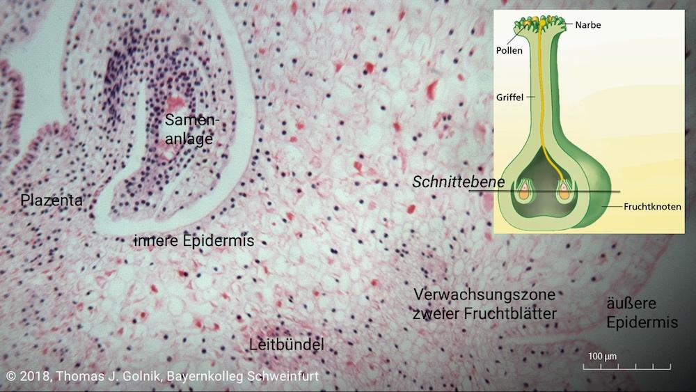 Mikrobild08 Fruchtknoten Lilie